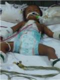 Nourrisson cambodgien opéré