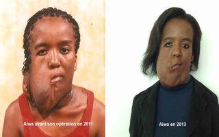 Aiwa a subi une opération en 2012
