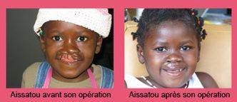 Aissatou avant et après son opération